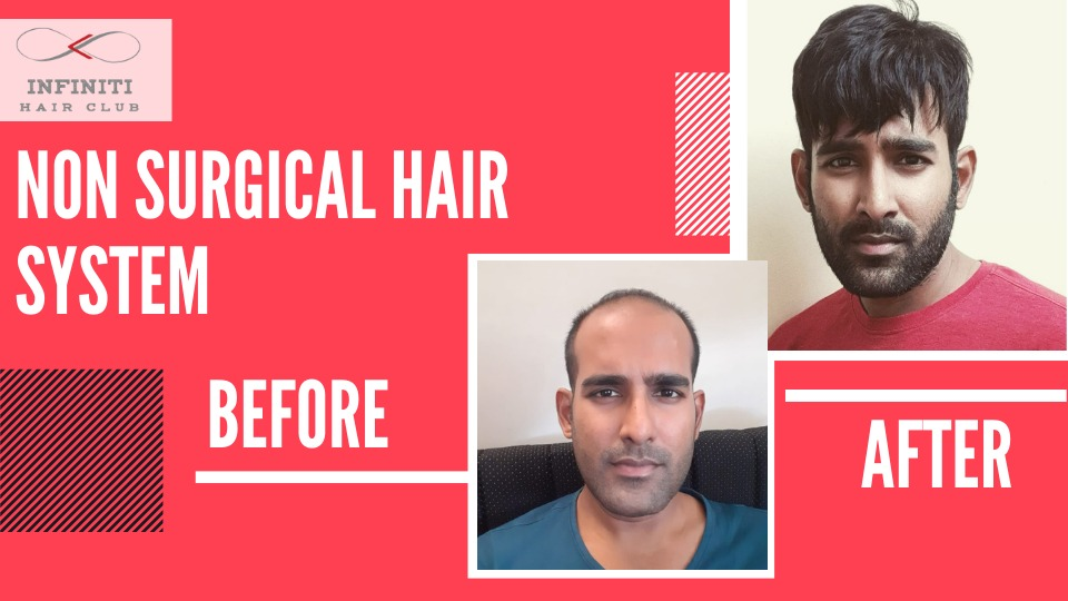 Meet the new experts of 'non-surgical' hair transplant – AlkaVerma and her salon – Infiniti Hair Club